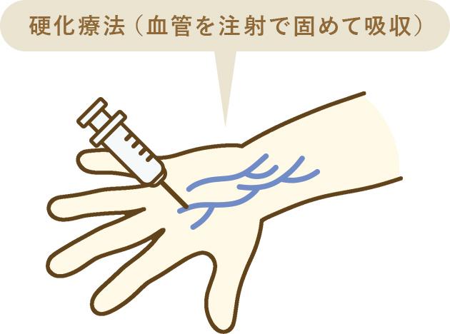 硬化療法(血管を注射で固めて吸収)