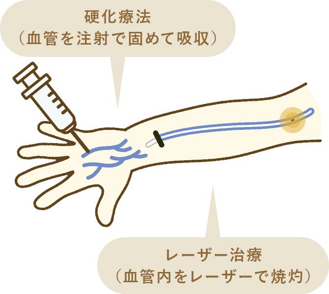 硬化療法とレーザー治療の同時施行について