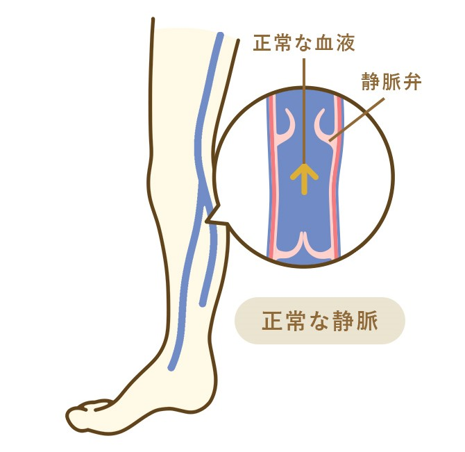 正常な静脈と下肢静脈瘤の違い